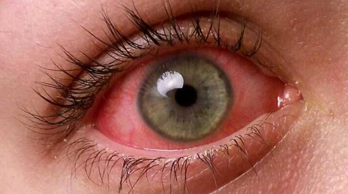 Pink Eye- No One Like to Look At