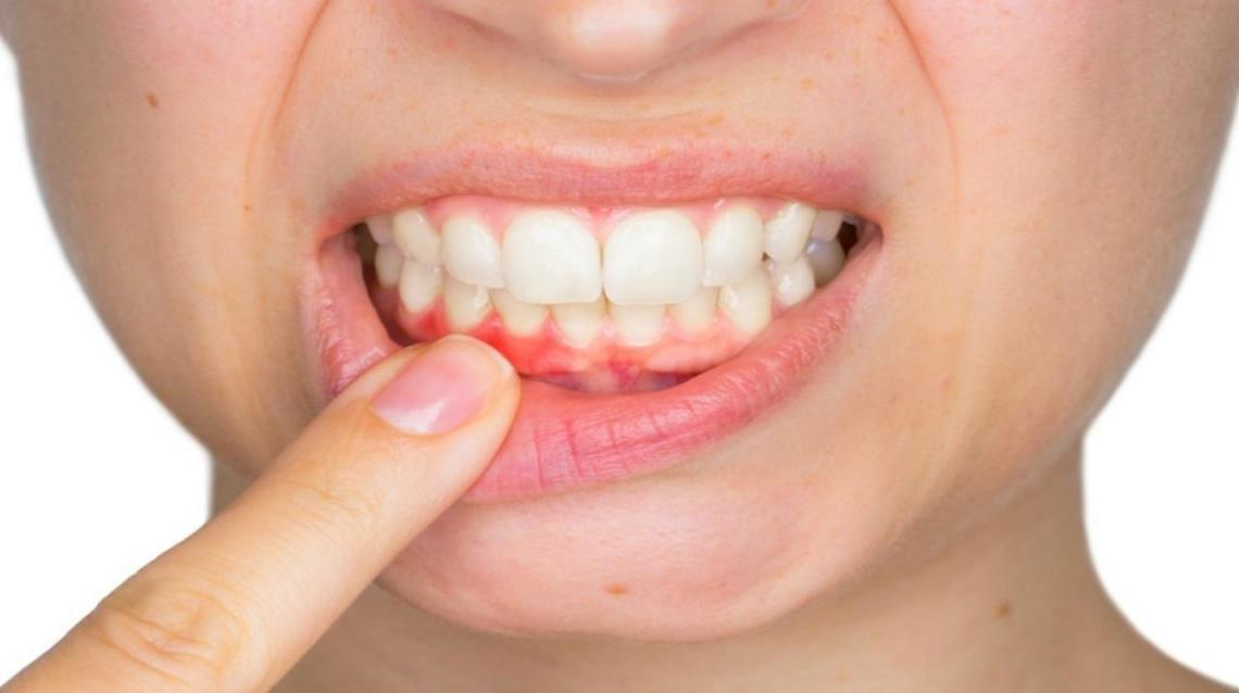 Gum Disease and Its Effects