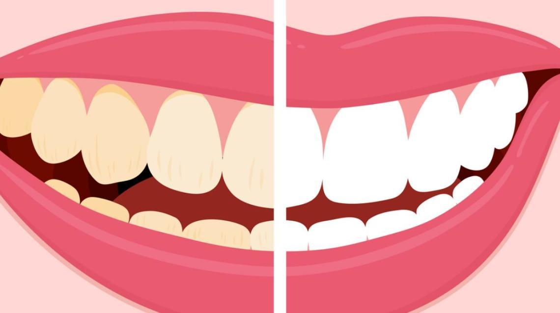 Eight Myths About Toothbrushing