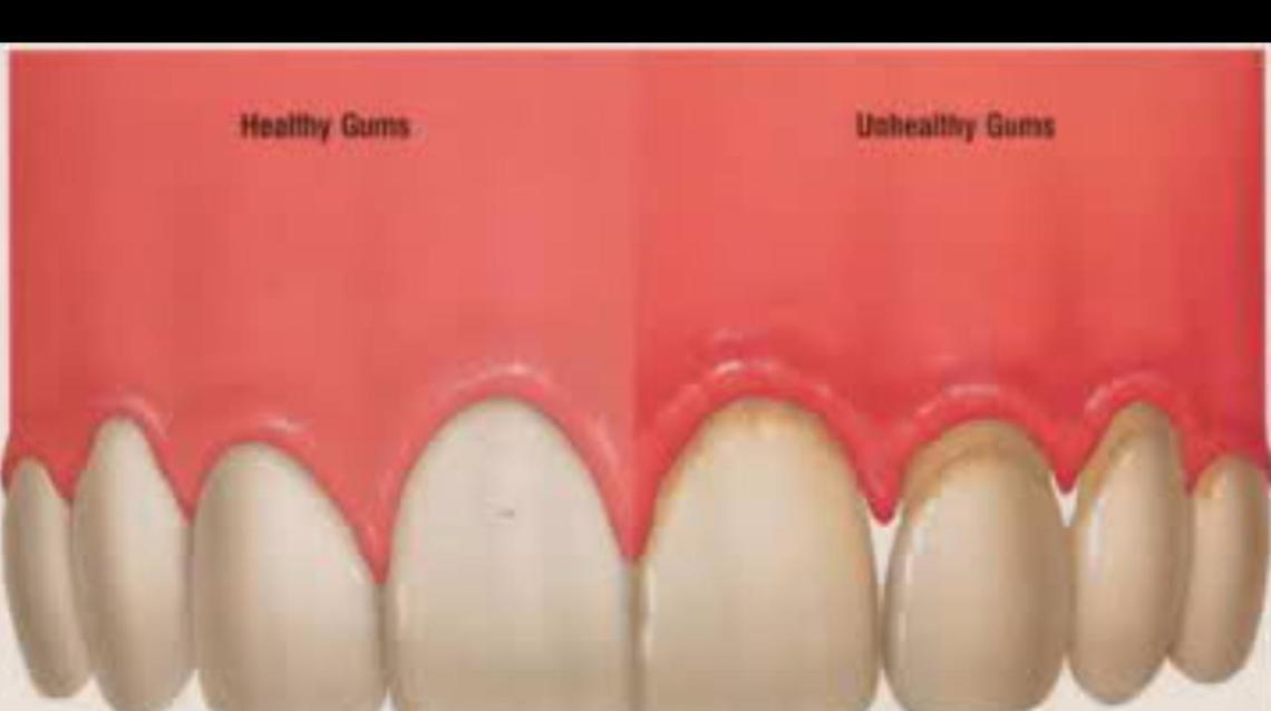 healthy: Healthy Teeth And Gums Vs Unhealthy