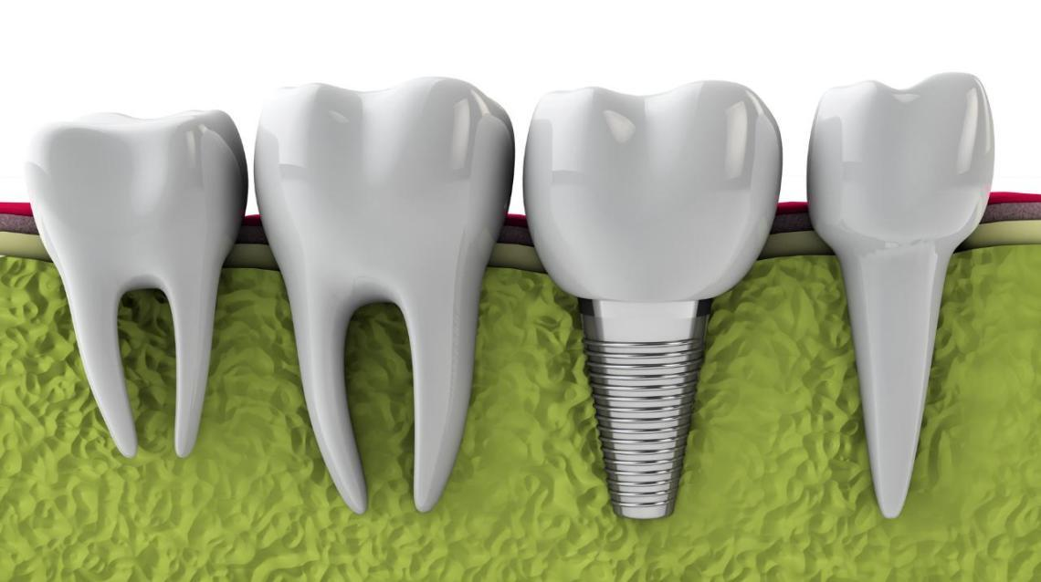 Replace Your Missing Tooth With Implants