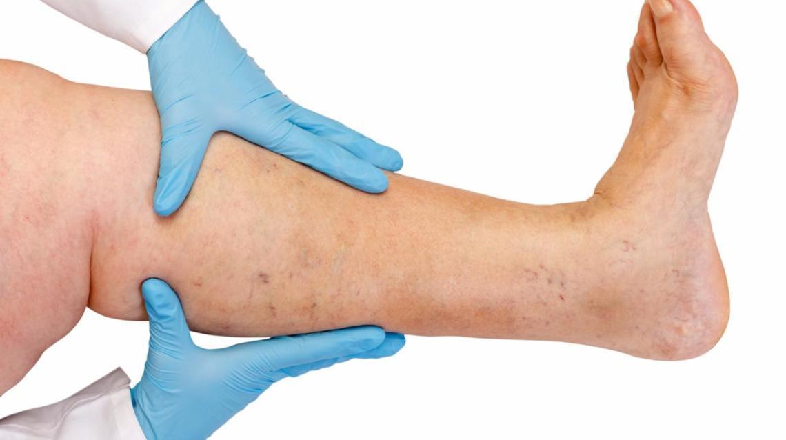 Varicose Veins & Its Management