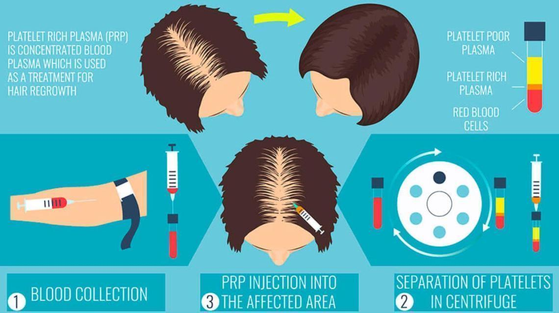 PRP Therapy: Promising Non-Surgical Treatment for Hair Loss