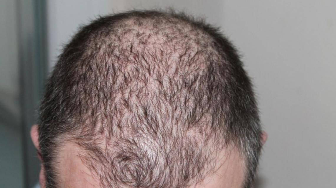 Hair transplant - Related articles, Q&A, doctors & clinics