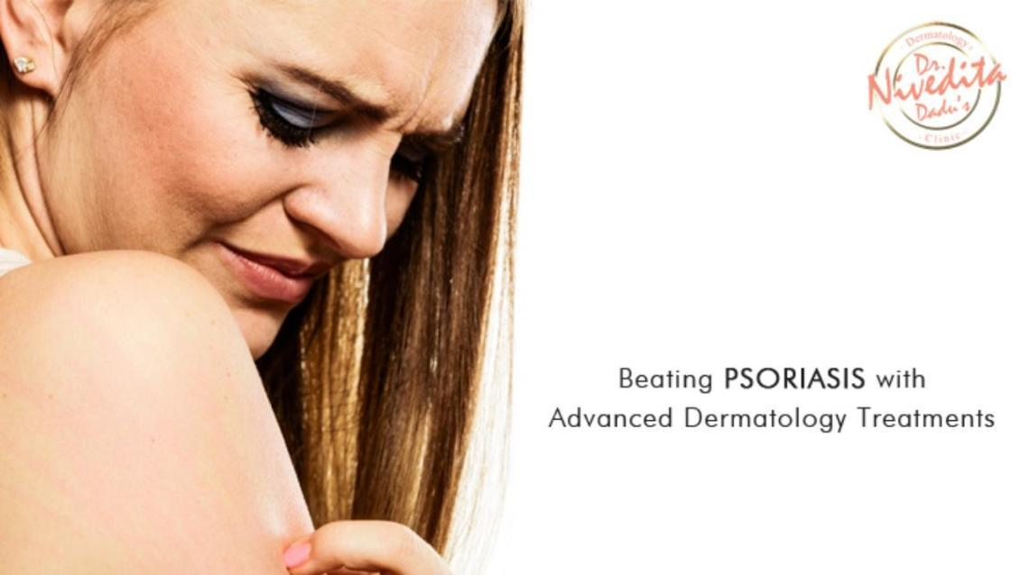 Beating Psoriasis With Advanced Dermatology Treatments.