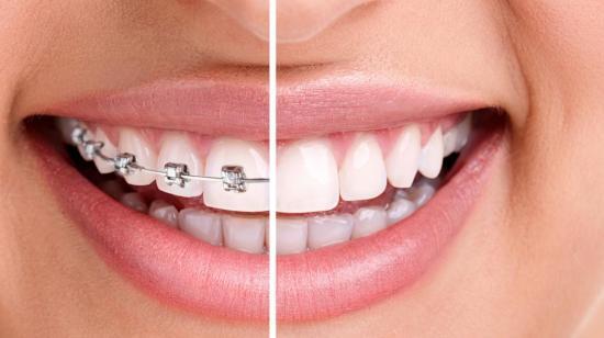 Gaps Between Front Teeth