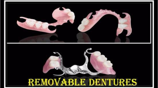 Removable Dentures- Care and Maintenance