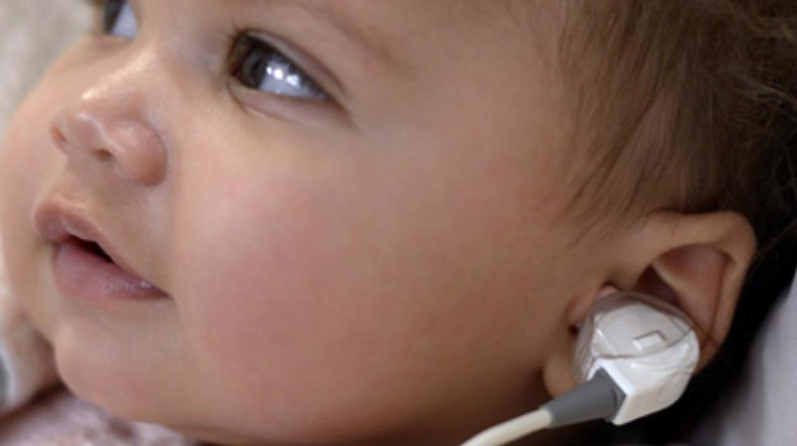 New Born Hearing Screening- Best Way Forward!!