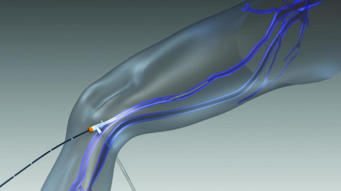 Varicose Veins: Laser Treatment, Radiofrequency Ablation and Sclerotherapy