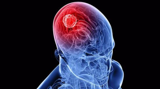 Brain Tumor - Causes, Symptoms and Treatment