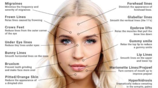 Botox: Treatment and Post-Procedure Tips