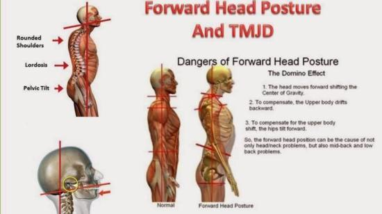 Postural Defects