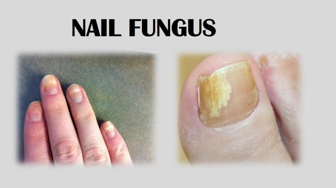 Nail Fungus Causes, Symptoms and Prevention