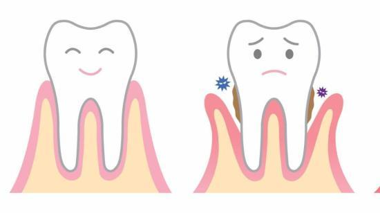 Facts About Cavity Preparation
