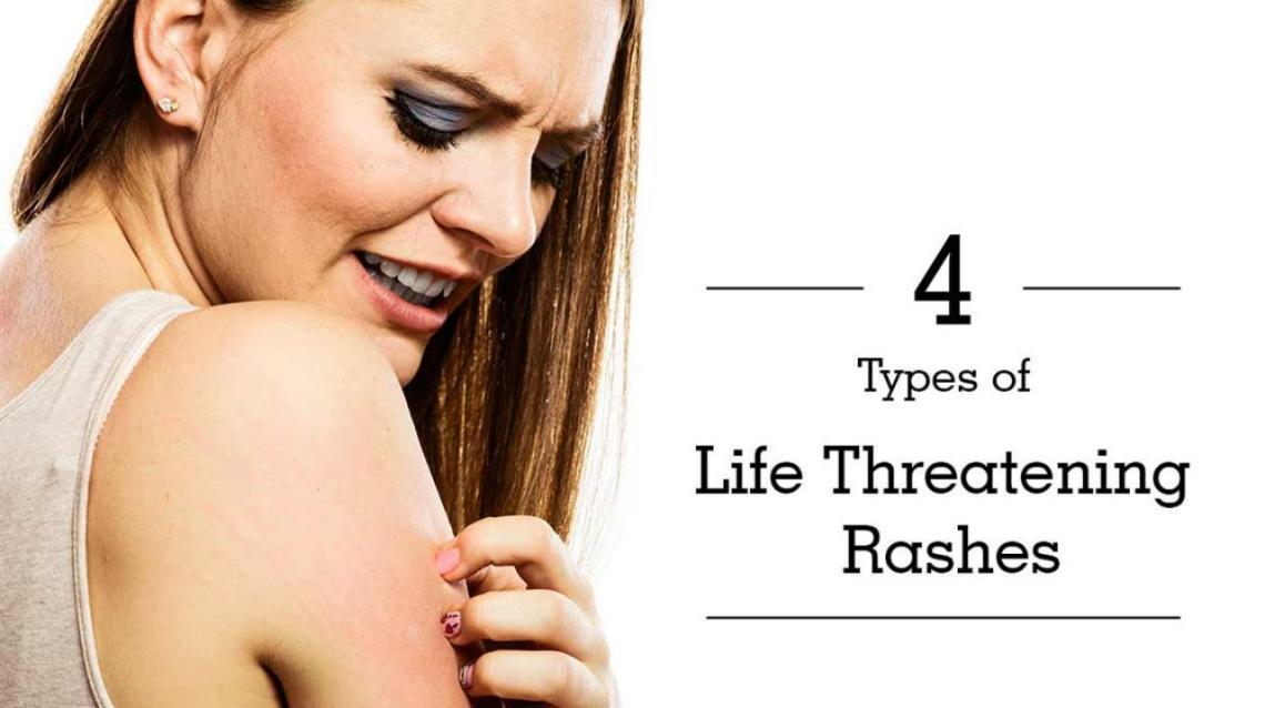 4 Types of Life-Threatening Rashes
