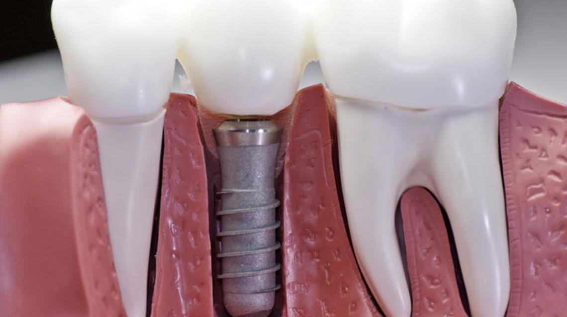 8 Signs Spell Trouble for Your Dental Implant