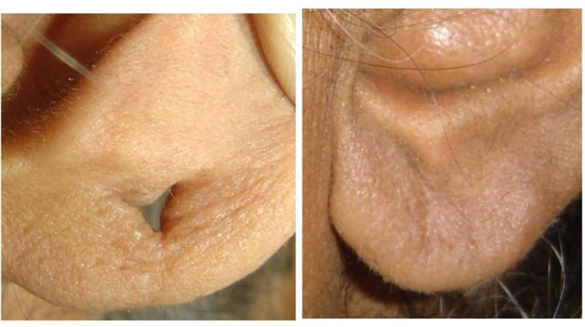 Sutureless Ear Lobe Repair