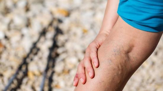 Varicose Veins: A Medical Condition That Can't Be Avoided!