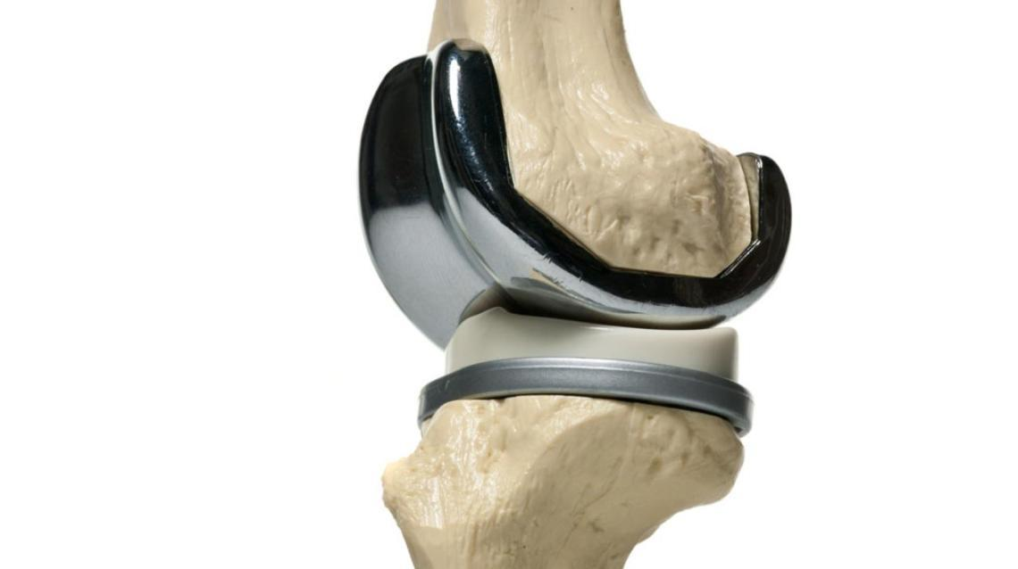 Physiotherapy Before Total Knee Replacement