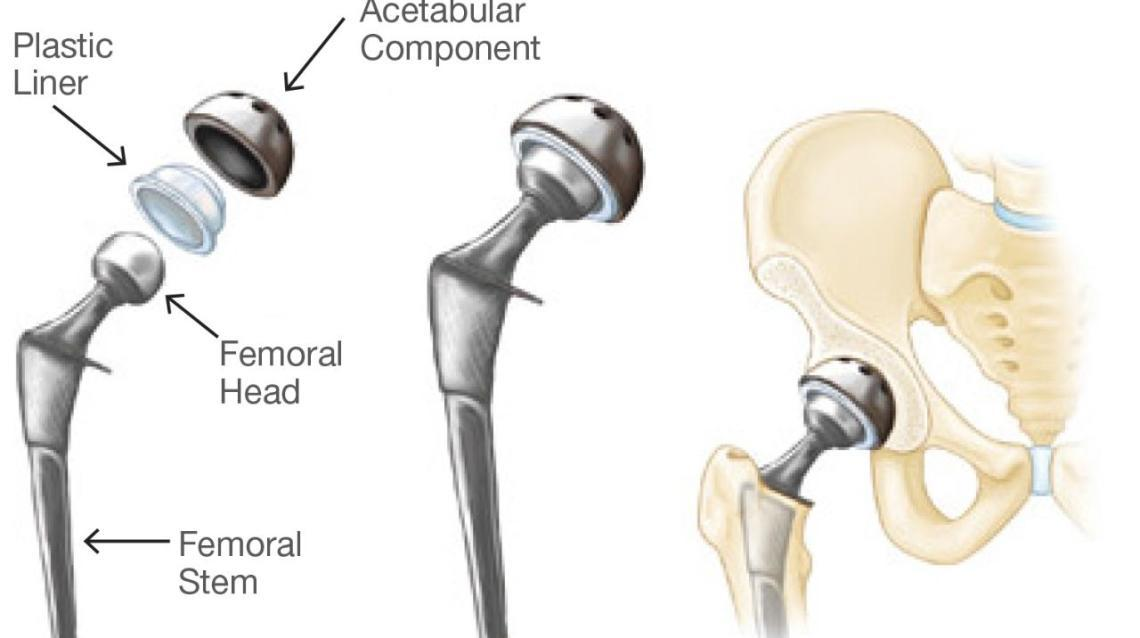 Hip Replacements ...
