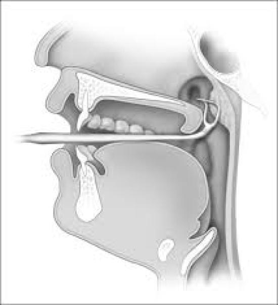 Conventional adenoid removal by Currette
