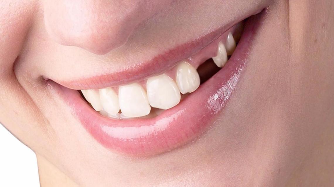 Итак, к чему снится, что выпадают и крошатся зубы?