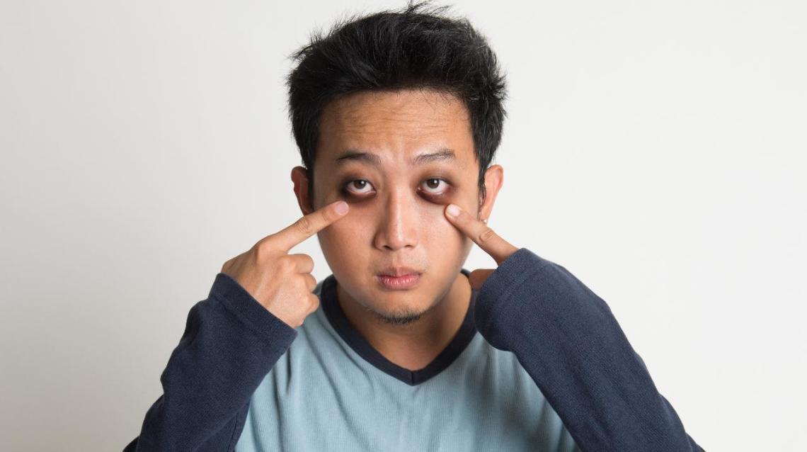 Does Lack of Sleep Really Cause Dark Circles?