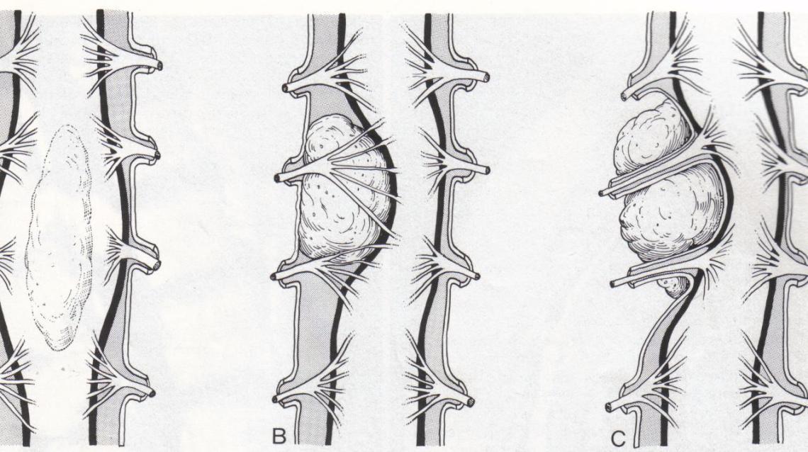 Spinal Tumors