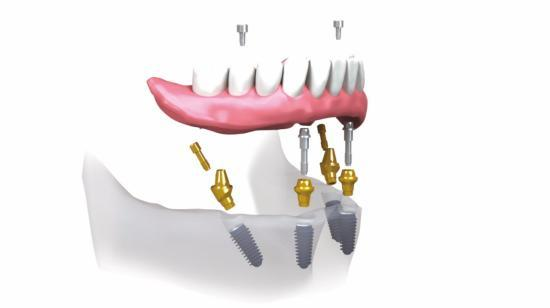 How Do You Get the Best Dental Implants Possible?