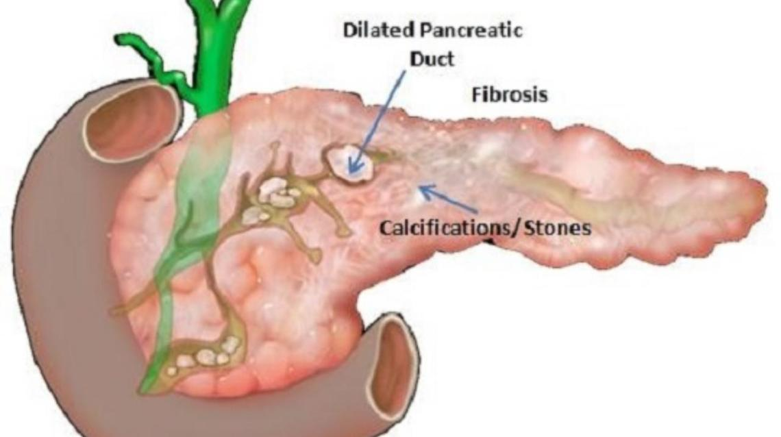 Pancreatic Stones