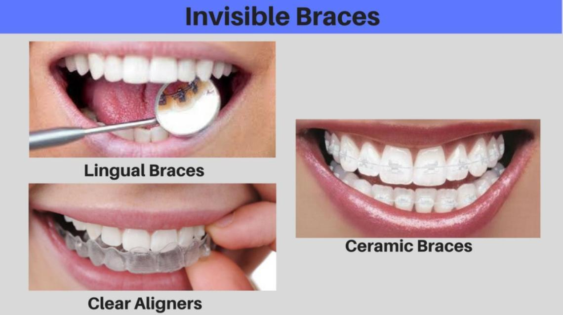 Invisible Braces - Meet Your Friendly Orthodontist for Advice