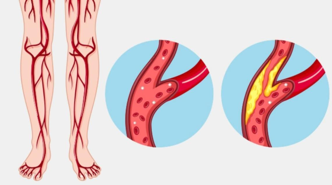 """Peripheral Arterial Occlusive Disease (Paod): Cause of a """"Leg Attack"""""""
