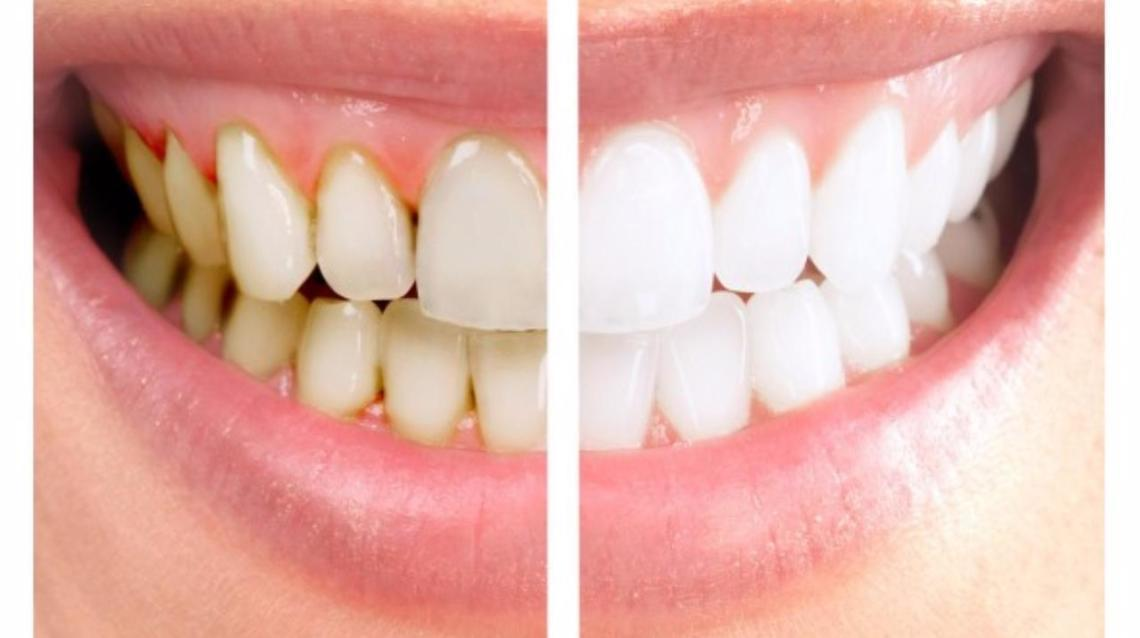 My  Teeth Got Mobile  After Scaling. A Truth or A Myth?