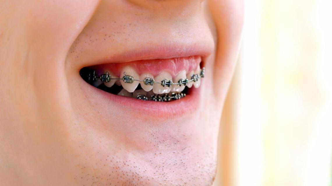 Popular Myths and Misconceptions About Orthodontic Treatment