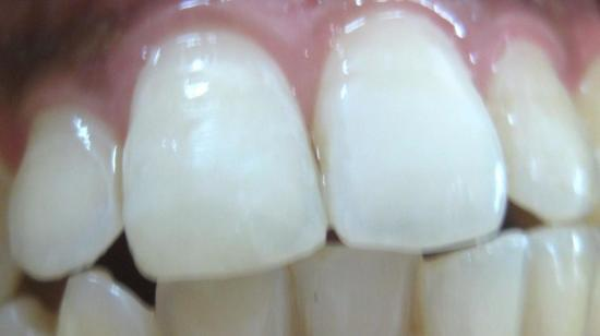 Immediate Tooth Repair With Composites