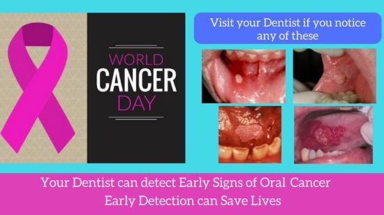 Oral Cancer - Timely Examination Can Help Cure It and Save Lives