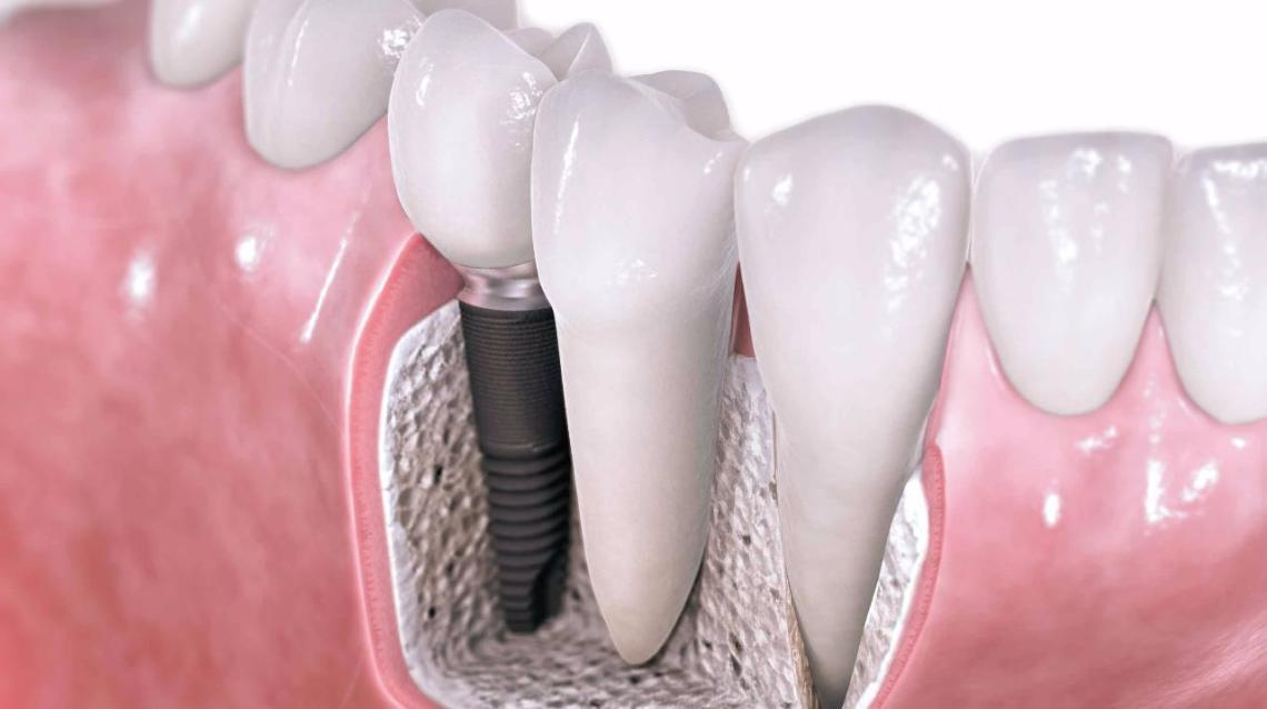 What Are the Benefits of Dental Implants Over Other Treatments?