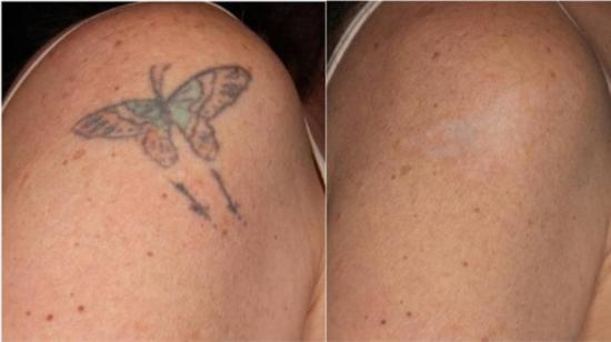 Tattoo Removal With Laser - It's Safe!