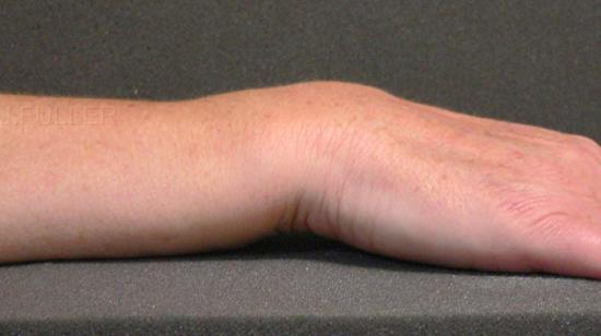 Classical Dinner Fork Deformity of Colles' Fracture of Wrist