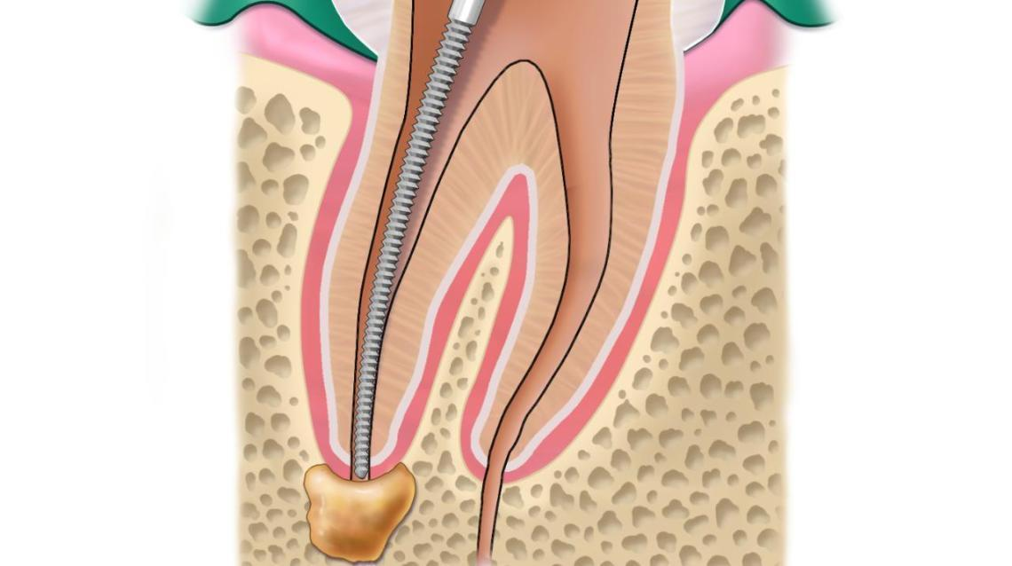 the benefits of root canal vs tooth extraction 9 important facts about wisdom teeth and tooth removal if a tooth's pulp or root is infected, the dentist may perform tooth extraction or root canal treatment.