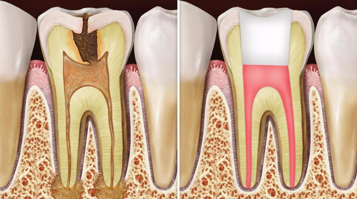Painless Rootcanal