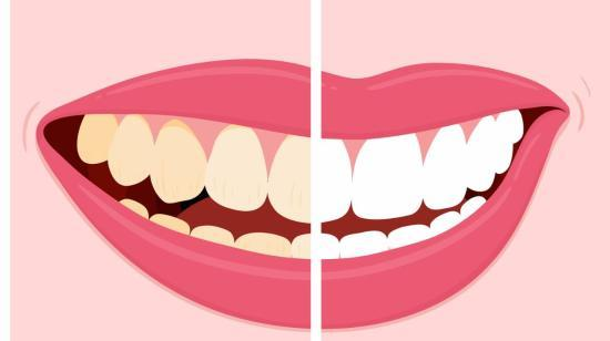Talk With Your Dentist Before You Whiten Your Teeth