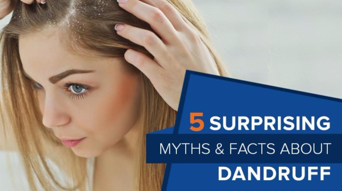 5 Surprising Myths & Facts About dandruff..
