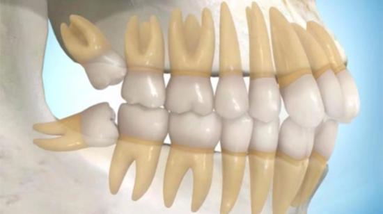 Wisdom teeth- The Problems & Their Solutions