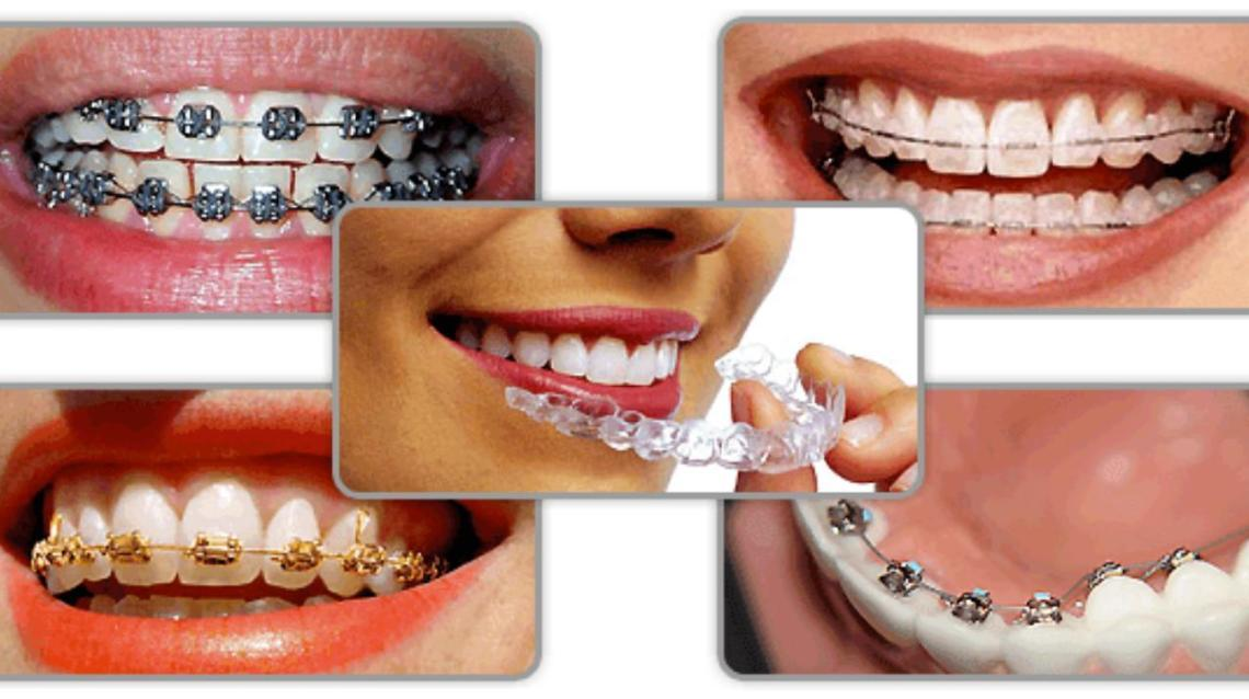 Myths and Facts About Orthodontic (Braces) Treatment