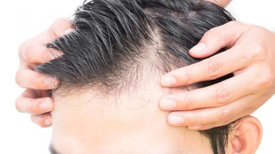 Common Side Effects of Hair Transplant