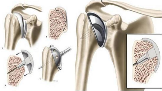Frequently Asked Questions by People Related to Total Shoulder Replacement