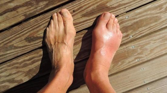 Raised Uric Acid Level Causes Gout: A Case of Mistaken Identity?!