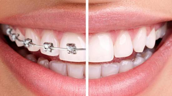Advancing and Exciting Era of Dental Braces. Are You Aware Of?