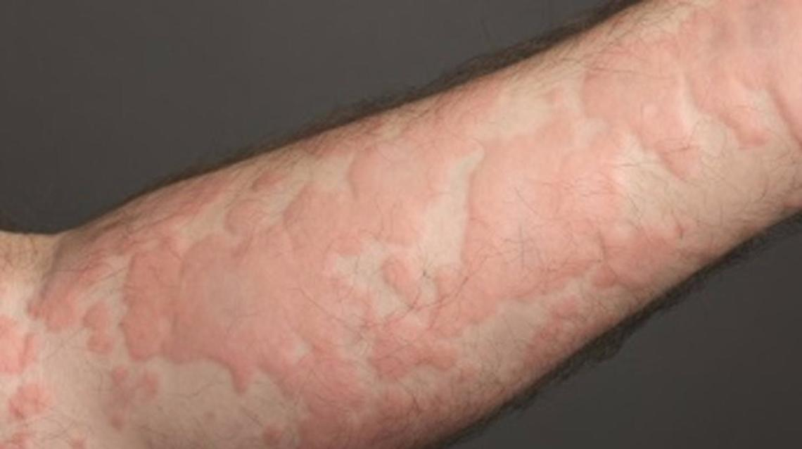 Home Remedies to Get Rid of Hives or Urticaria